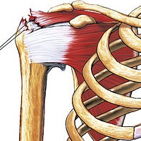 Rotator Cuff Tear: Exercises and Treatment Before Resorting to Surgery