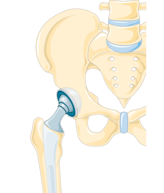 Hip Replacement – Exercises and Other Strategies to Boost Recovery
