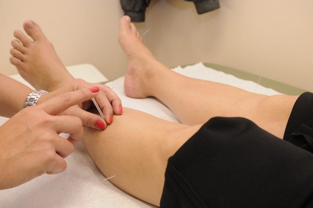 Trigger Point Dry Needling on Leg