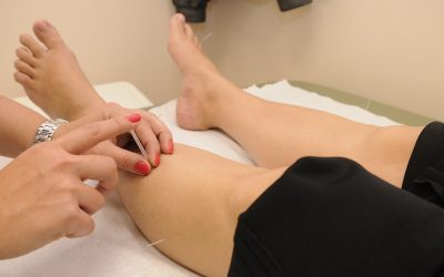 Frequently Asked Questions about Trigger Point Dry Needling